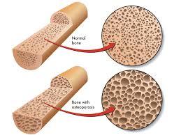 Osteoporsis